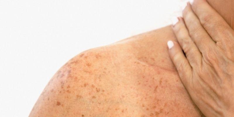 Sardas e manchas na pele